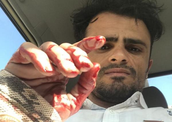 إصابة الصحفي الشعيبي أثناء تغطيته للمعارك في قعطبة بالضالع