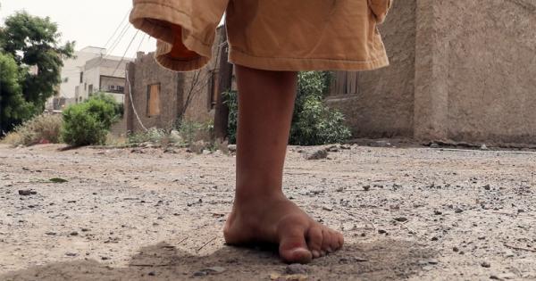 """موقع """"اكسيوس"""" الأمريكي: الألغام التي زرعها الحوثي في معظم أراضي اليمن تشكِّل تهديداً يفوق أي سلام ممكن"""