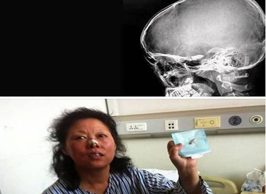 """صينية تعيش ൸"""" عام مع رصاصة في رأسها"""