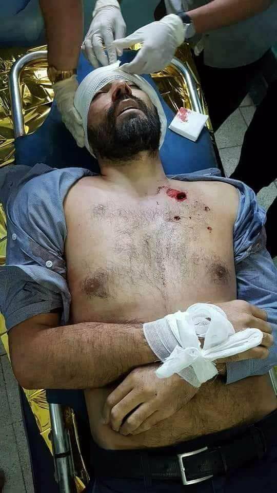 الحكومة اليمنية تدين عملية اغتيال أحد موظفي الصليب الأحمر الدولي