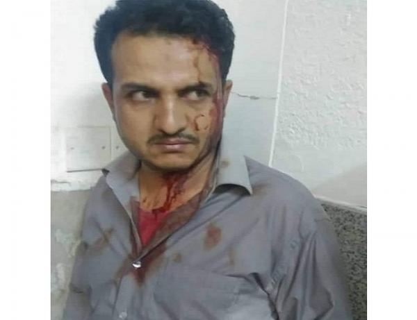 مشرف حوثي يعتدي ومرافقيه بالضرب المبرح على طبيب في مستشفى الثورة بصنعاء