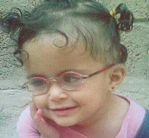 إدخال طفلة العناية المركزة في إب بعد إصابتها بالرصاص الراجع