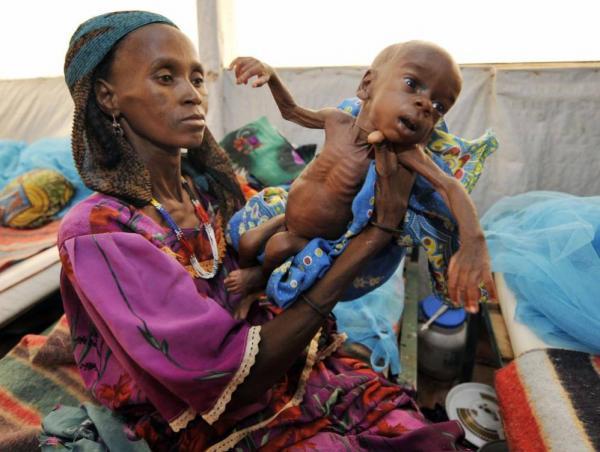 الأمم المتحدة: جوعى العالم يناهزون المليار
