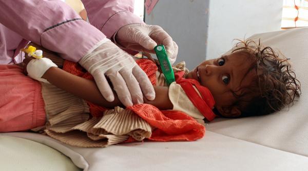 وفاة طفل متأثراً بوباء الكوليرا الذي يجتاح قرى الشمايتين بتعز