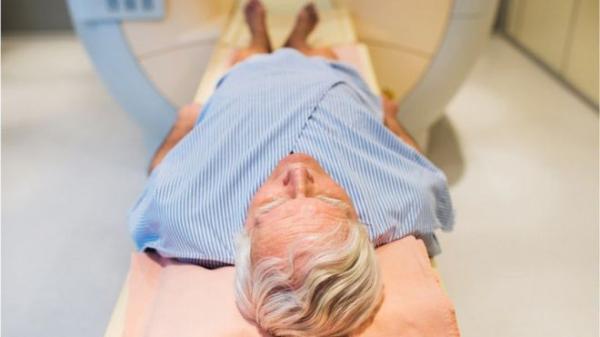 """باحثون يتوصلون إلى عقار يمثل """"ثورة"""" في علاج سرطان البروستاتا"""
