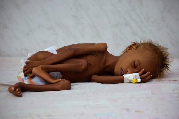 في اليمن المحاصر بممالك النفط: الموت جوعاً