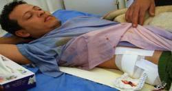 مقتل متظاهر واصابة آخرين برصاص قوات الامن في صنعاء