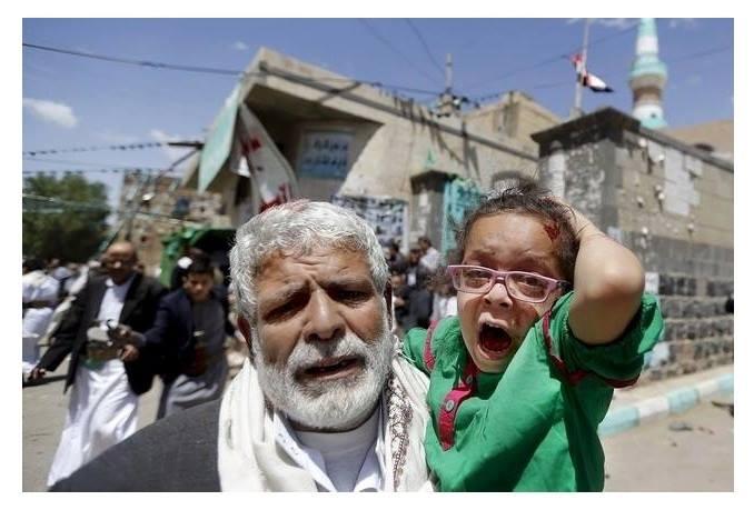 احتجاج ممزوج بفزع.. طفل يمني أصيب في تفجير إرهابي (انتحاري) يوم الجمعة 20مارس/ آذار 2015 من بين 3 تفجيرات مشابهة استهدفت المصلين في مسجدين بالعاصمة اليمنية صنعاء وخلفت أكثر من 145 شهيدا ومئات الجرحى.