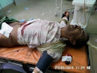 غالب سبيع، أصيب واستشهد شقيقه، إلى جوار قبر أمهما بينما كانا يزورانها، في مقبرة العمودي بمدينة ذمار اليمنية، جراء قصف طيران العدوان السعودي للمقبرة بأربعة صواريخ يوم الأربعاء 27 مايو آيار 2015