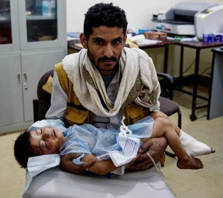 أب يحتضن طفله بعد أن قتله طيران العدوان السعودي في صعدة
