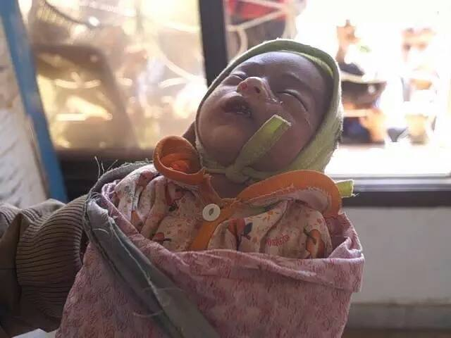 الرضيعة امل، أصغر شهداء ضوران آنس محافظة ذمار، تحت قصف المقاتلات السعودية الإماراتية على منازل المواطنين؛ الثلاثاء 15 سبتمبر 2015