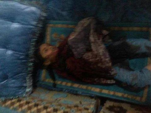 غارات التحالف السعودي قتلت الطفلة حسناء الوهبي، البيضاء، الجمعة 18 سبتمبر /أيلول 2015... قال عسيري: