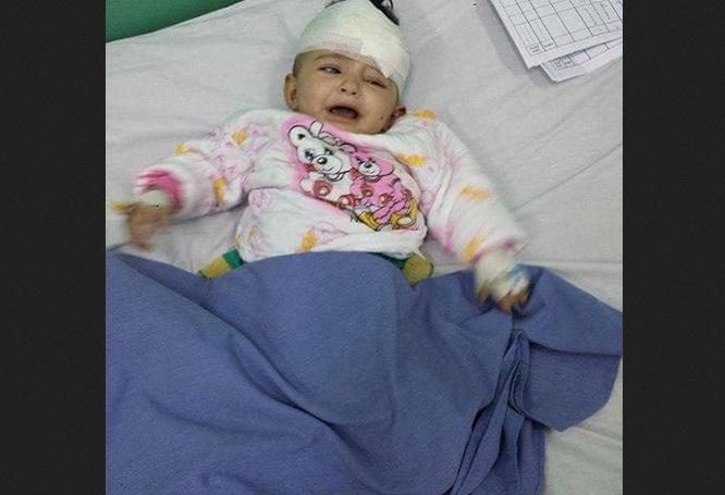 طفلة يمنية الناجي الوحيد من أسرة كاملة قوامها 13 شخصاً جراء غارات التحالف التي استهدفت منزلهم بآل قراد مديرية باقم صعدة، الجمعة 18 سبتمبر/أيلول 2015