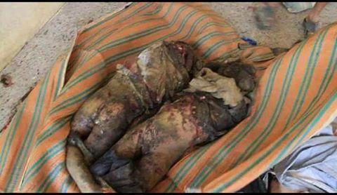 طفلان ضمن 67 شهيداً في مجزرة مروعة ارتكبها طيران التحالف السعودي، الاحد 20 سبتمبر 2015، في سوق منبه بمحافظة صعدة (شمال اليمن)