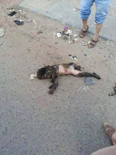 طفل ضمن 5 استشهدوا جراء قصف جوي للتحالف السعودي على حي السد بمنطقة نقم بصنعاء، الخميس 15 أكتوبر/تشرين الأول 2015 (+18)